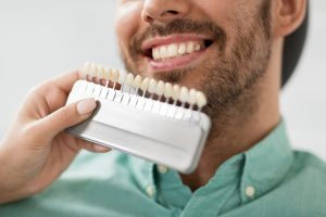 A man in a teal shirt is comparing his teeth to reference veneers for a restorative dentistry treatment.